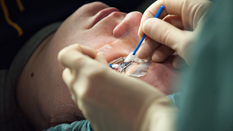 What Should You Expect from Your Lasik Surgery?